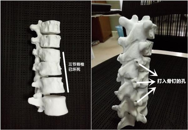2013年,西安一个23岁的女孩,脊椎患了骨结核,已经被病菌侵蚀得像80岁老人那样疏松。 看了CT扫描的图像,医生们从来没有遇到过这么高难度的手术。于是,博恩生物的技术团队(南极熊备注:那时候还未叫博恩生物)对女孩脊柱骨骼解剖模型进行结构分析,研究了骨骼的内部微细结构、外形轮廓以及力学性能的仿生设计方法。通过控制3D打印工艺参数、基体材料成分和材料形状参数,使打印仿生模型具备了真实骨骼的密质骨和松质骨结构特征,以及相似的梯度力学性能,从结构、力学性能、外形精度及表面粗糙度几方面实现了骨骼的仿生制造。